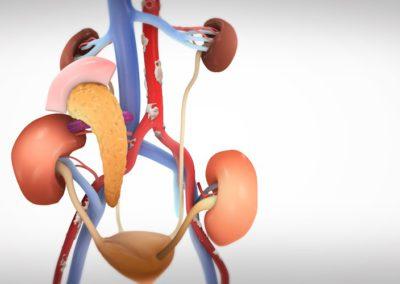 Синхронна трансплантация на панреас и бъбрек