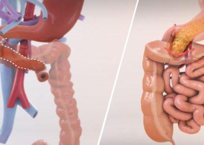 Изолирана трансплантация на черва