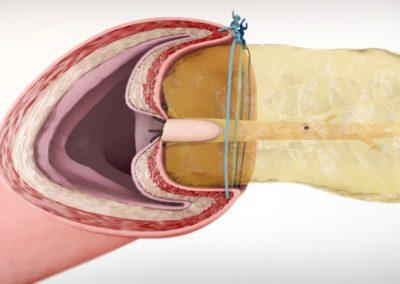 Техника за реконструкция: Лапароскопска панкреатойеюноанастомоза по Блумгарт