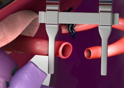 Съдова реконструкция: микроваскуларна чернодробна артериална реконструкция