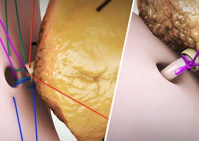 Реконструкционна техника: Панкреатойеюноанастомоза със стент