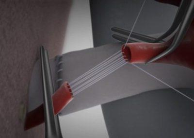 Съдова реконструкционна техника: парашутна артериална анастомоза