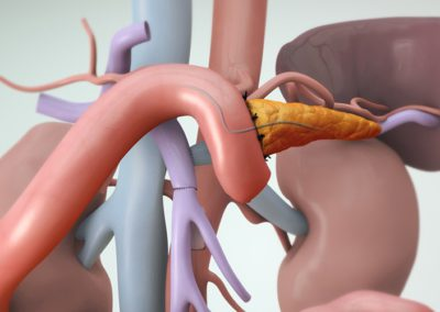 Панкреатодуоденектомия (операция по Уипъл)